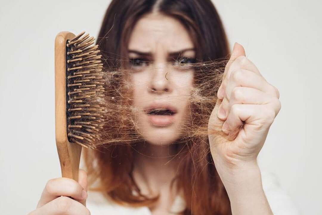 Postpartum Hair Loss - Everything You Need To Know About Postpartum Hair Loss: Causes, Treatment & What To Do About It